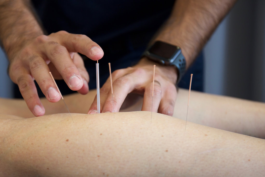 A client that is benefiting from our dry needling in Cranbourne